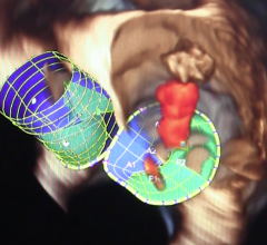 mitral valve surgery outcomes, twisting of the heart, echocardiography, NICSMR, JACC Basic to Translational Science