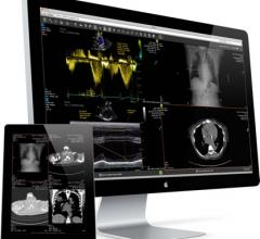 lifeIMAGE, Client Outlook, partnership, eUnity clinical image viewer, HIMSS16
