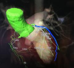 An example of the newest generation of smart cardiac CT software that automatically identifies the anatomy, autotraces the centerlines on the entire coronary tree and labels each vessel segment.