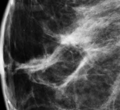 Mayo Clinic, breast density, awareness, women's health, mammography