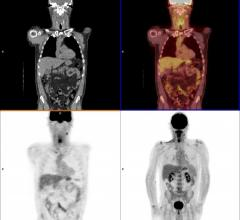 A PET/CT head and neck cancer scan.