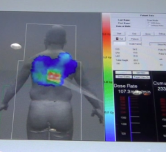 Toshiba is developing a radiation dose alert to show interventionalists how much dose they have delivered to their patient from X-ray angiography.
