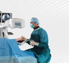 mobile c-arm, GE OEC Elite, foot surgery
