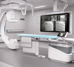 Philips provides the Allura Xper and AlluraClarity angiography imaging systems with ClarityIQ technologies
