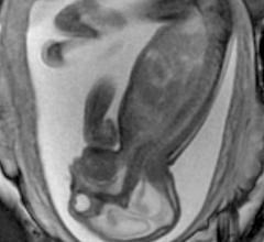 Zika virus, imaging zika, radiology of Zika, medical imaging of zika