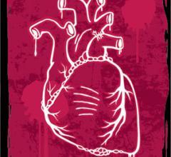 RSNA 2012 Coronary Artery Disease Clinical Study