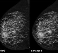 iCAD, PowerLook Tomo Detection, computer-aided detection software, CAD, digital breast tomosynthesis, DBT, RSNA 2017