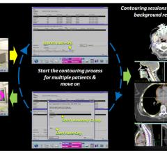 Philips Introduces Solutions at AAPM 2012 to Simplify Workflow in Radiation Oncology
