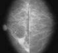MRI-Guided Biopsies