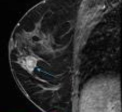 Breast MRI Useful Adjunctive Tool to Inclusive Mammography, US