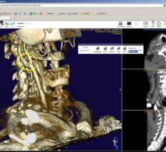 Nil 4.0, PACS 3.0, Claron Technology, remote viewing systems, RSNA 2014