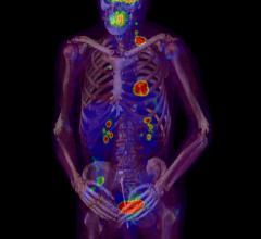 ASTRO guideline, bone metastases, pallliative radiation therapy, gold standard