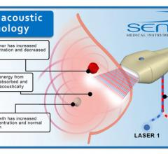 Seno Medical Instruments, Imagio breast imaging system, PIONEER Study, optoacoustics
