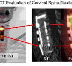 SNM 2011 Image of the Year: 18F NaF PET/CT Evaluation of Cervical Spine Fixation Hardware