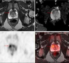 PET, mpMRI, prostate cancer detection, targeted biopsies, University of Michigan study, Morand Piert