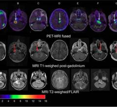 PET/CT Helps Predict Therapy Effectiveness in Pediatric Brain Tumors