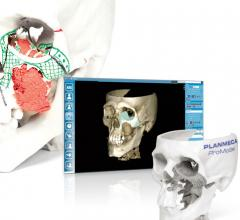Planmeca ProModel, 3-D printing, first Nordic facial tissue transplant procedure