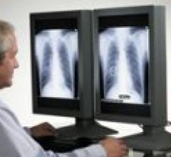 FDA Approves Improved Chest X-ray Technology