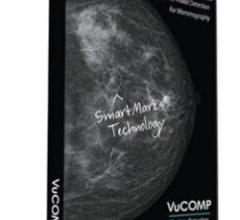mammography systems rsna computer aided detection women's health vucomp konica
