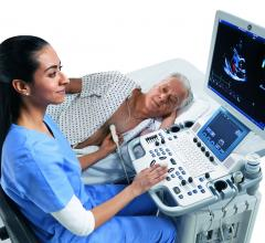ASE Launches Challenge to Foster Innovation in Cardiovascular Ultrasound Workflow