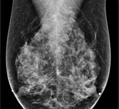 VuComp, M-Vu CAD, mammography, version 3.2