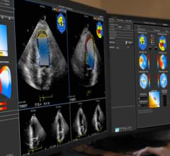 EchoInsight for Cardio Oncology Clinical Study Left Ventricle Function
