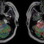 susceptibility-weighted imaging, SWI MR, SWI MRI, MRI Brain scan