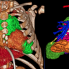 3D CT image reconstruction of the thoracic organs and the heart using Philips software.