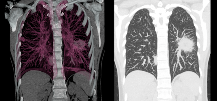 A low-dose lung CT scan can be used to help detect lung cancer caused by mesothelioma.