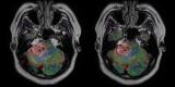 susceptibility-weighted imaging, SWI MR, SWI MRI, MRI Brain scan
